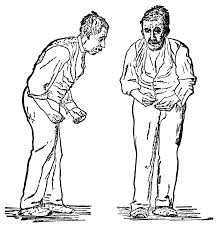 Illustration of the Parkinson Disease
